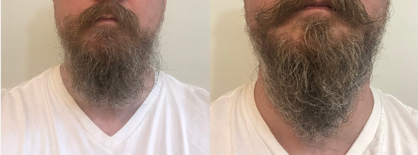 beard balm before and after